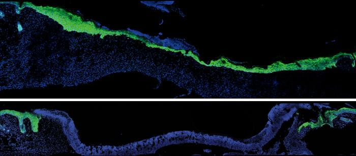 Molecular changes in aging skin influence speed of wound